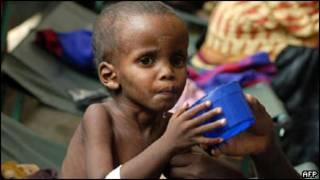 Criança desnutrida na Somália Foto: AFP