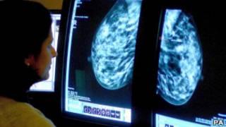 Câncer de mama. PA