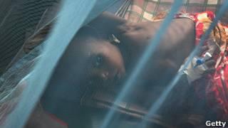 طفلة مصابة بالملاريا