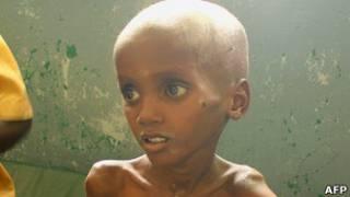 Mtoto mgonjwa anayekabiliwa na tishio la kuangamia nchini Somalia