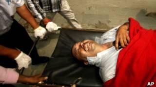Раненый при взрыве в Дели