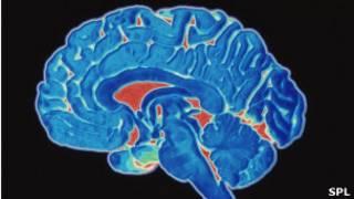 Tomografia de cérebro.