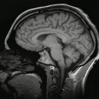 Cérebro/ Wikimedia Commons