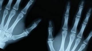 La regeneración de huesos a partir del uso de la tecnología