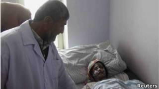 یکی از قربانیان اسیدپاشی در کندوز، در بیمارستان