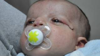 Photo: Courtesy of Kaplan Hospital