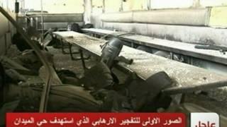 دمشق میں بس پر بم حملہ