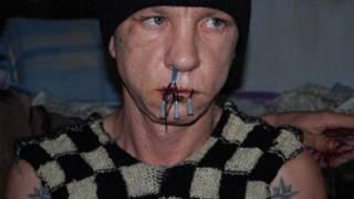 заключенный с зашитым ртом