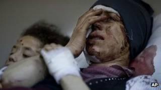 جرحى في حمص