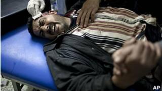 جريح سوري في أحد الممستشفيات