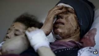 جريح في المظاهرات السورية