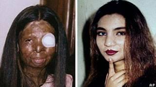 Fakhra Younus antes e depois do ataque com ácido (AFP/Acervo da Família Younus)