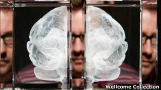 голографическое изображение мозга человека