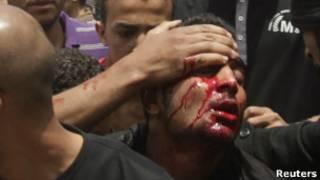 Избитый египетский демонстрант