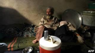 رجل مسن يعاني من نقص في الغذاء في اليمن