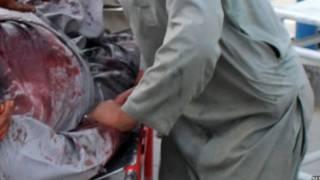مجروح در بیمارستانی در کویته