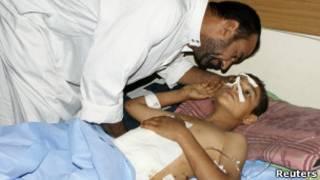 صبي جريح بانفجار في بغداد 23/06/2012