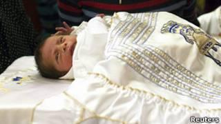 Ребенок после обрезания
