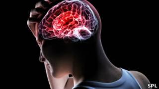 Investigadores de Cambridge estudian el cerebro de los adolescentes
