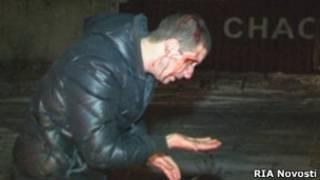 Мужчина, пострадавший при задержании у стен колонии в Копейске