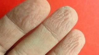 Dedos arrugados