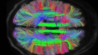दिमाग का स्कैन