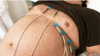 मोटापा, दिल का रोग