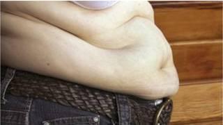وزن البطن