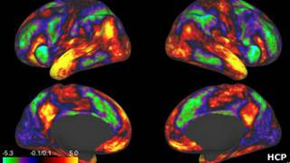 скан мозга на томографе