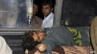 Пакистанец, раненый во время землетрясения