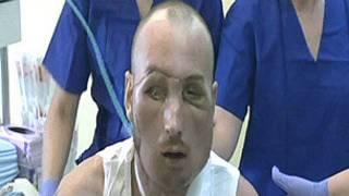 Trasplante facial en Polonia