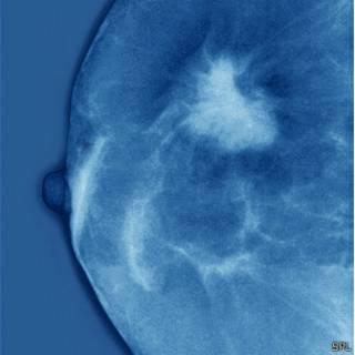 tumor na mama (foto: SPL)