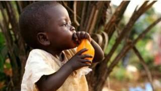 سوء التغذية ووفاة الأطفال