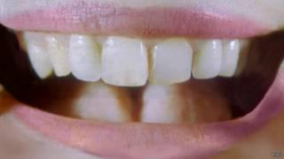 Dente humano   Foto: BBC