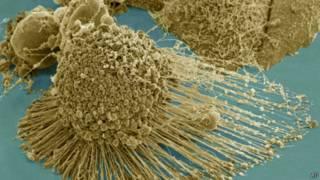 Células de câncer Hela | Foto: AP
