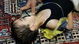 Wata yarinya 'yar Syria ana sa mata iskar Oxygine