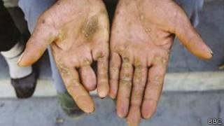 Повреждение кожи от мышьяка