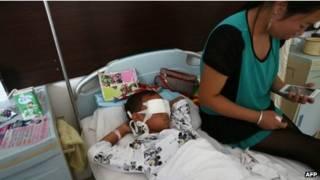 बच्चा अस्पताल में भर्ती है और अब ख़तरे से बाहर है.