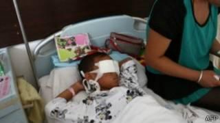 menino teve olhos removidos em ataque   AFP