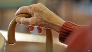 Рука пенсионера