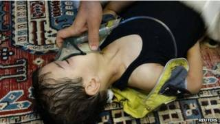 criança vítima de armas químicas | Reuters