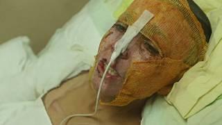 Bomba saldırısında Ahmet'in vücudunun yüzde 40'ı yandı