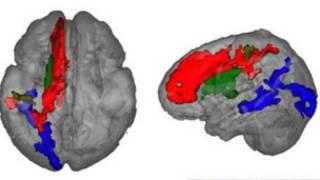 Сканирование мозга детей