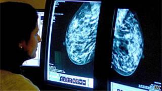 Exame de câncer de mama (PA)