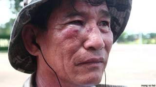 Ông Lưu Trọng Kiệt sau khi bị hành hung hôm 29/10