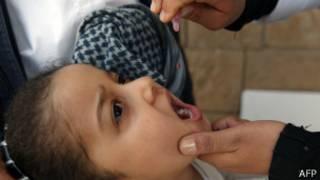 طفل يتلقى جرعة للتطعيم ضد شلل الأطفال