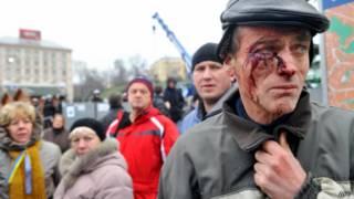 Раненый при разгоне протеста