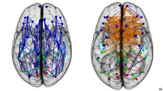 Conexiones cerebrales de hombres y mujeres