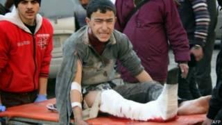 زخمی های حلب