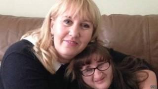 Amy e Jayne Hughes   Crédito: BBC